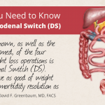 What You Need to Know for the Duodenal Switch (DS)