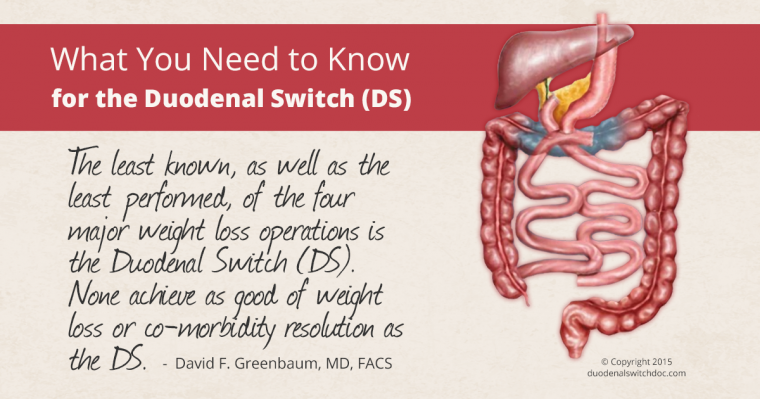 the duodenal switch