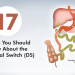 17 Things You Should Know About the Duodenal Switch (DS)