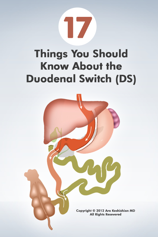 17 things you should know about the duodenal switch