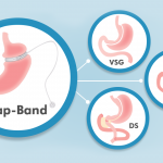 What to Expect from a Lap-Band Revision to VSG, RNY, or DS