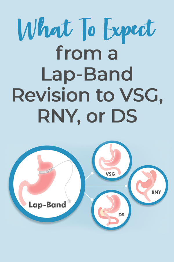 revision from lap band
