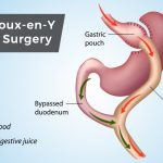 Gastric Bypass Surgery: Yesterday and Today