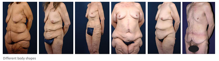 The Reality Of Skin Elasticity After Bariatric Surgery Obesityhelp