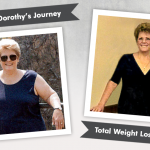 Before & After RNY + Plastic Surgery with Dorothy, losing 180 lbs!