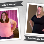 Before & After Duodenal Switch (DS) with Holly, losing 220 pounds!