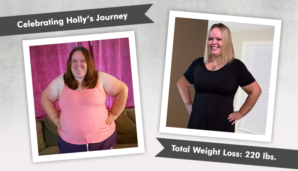 Before & After Duodenal Switch (DS) with Holly, losing 220 ...