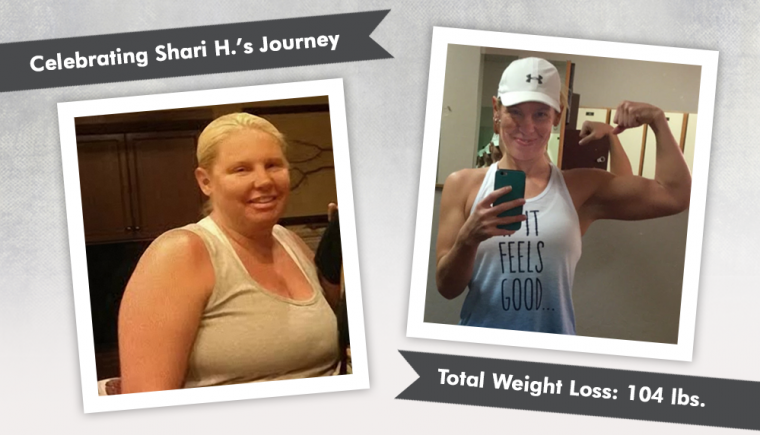 before after vsg with shari h