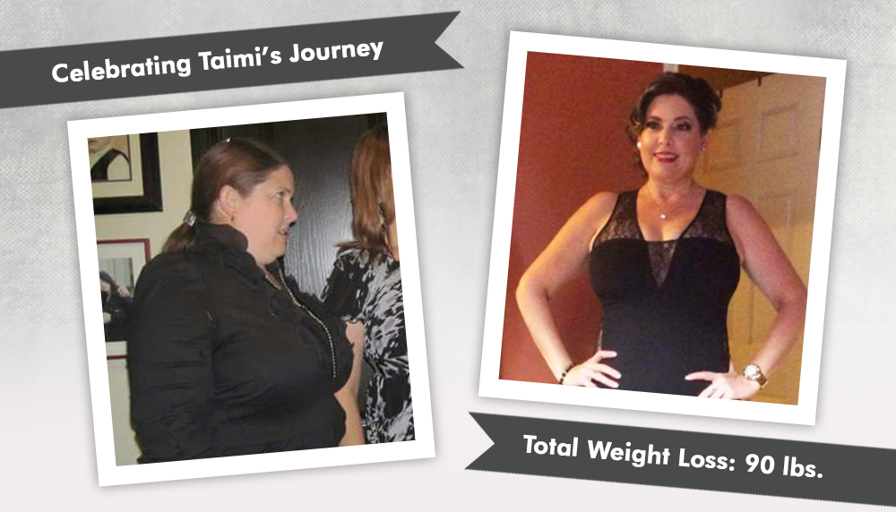 Before Amp After Vsg With Taimi Losing 90 Pounds Obesityhelp