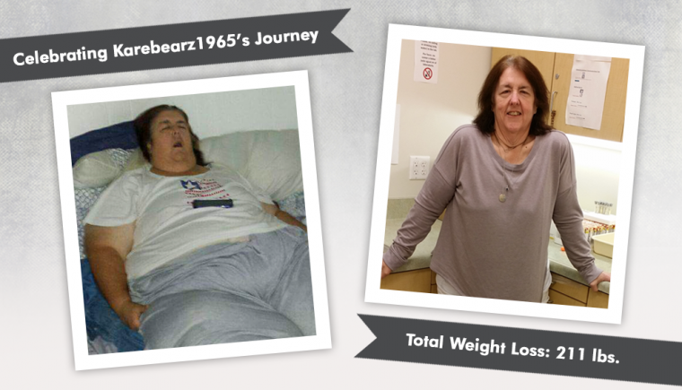 Before After RNY Gastric Bypass With Karebearz1965