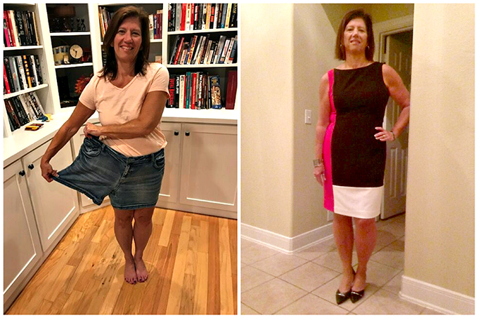 Before & After VSG with Terri