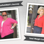 Before & After RNY with WatchPattiMelt, losing 205 pounds!