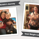 Before & After VSG with Kristin of Bariatric Mindset, losing 199 pounds!