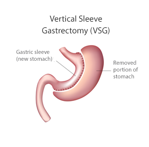 vertical sleeve (vsg) or gastric bypass (rny)