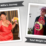 Before & After VSG with Millie, losing 97 pounds!