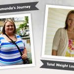 Before & After VSG with Amanda, losing 150 pounds!