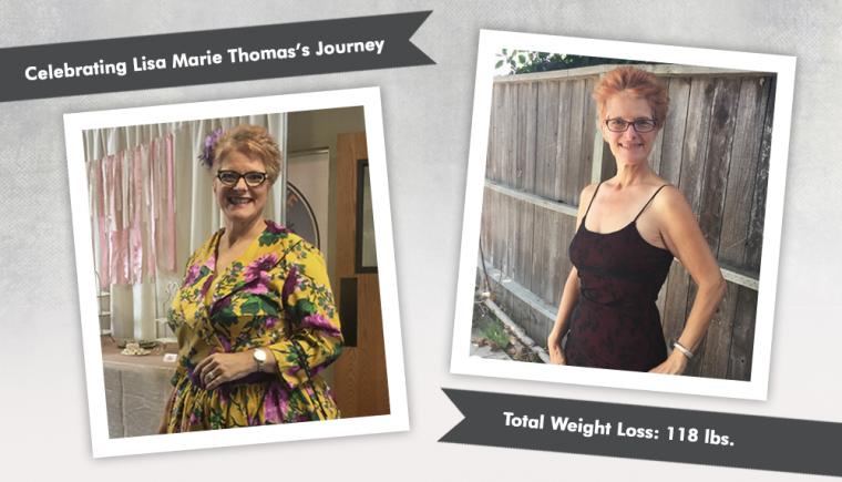 Before After VSG with Lisa Marie Thomas