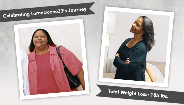 Before After RNY with LornaDoone33 losing 185 pounds
