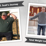 Before & After RNY with T. Scott, losing 225 pounds!