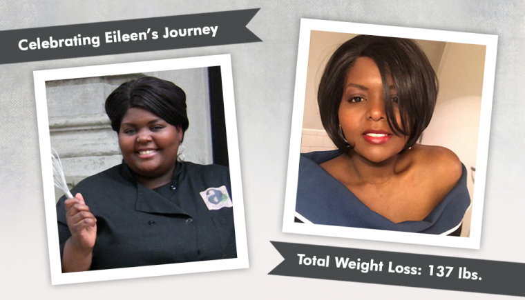 Before After DS with Eileen losing 137 pounds