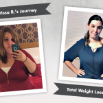 Before & After VSG & PCOS with Carissa R., losing 150 pounds!
