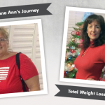 Before & After VSG with Donna Ann, losing 140 pounds