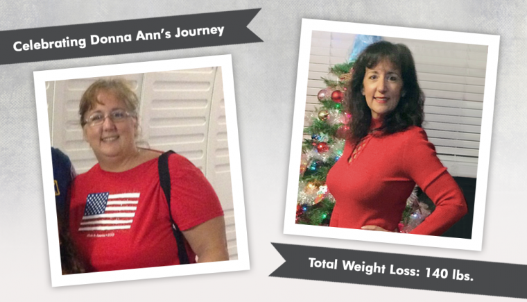 Before After VSG with Donna Ann