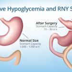 Reactive Hypoglycemia After RNY: Causes, Signs, and Treatments