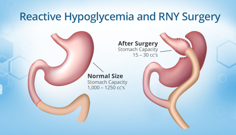 Reactive Hypoglycemia After RNY