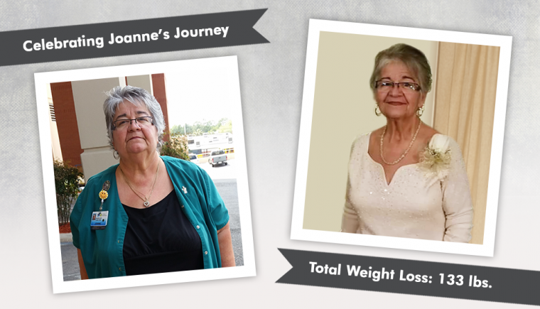 Before & After RNY with-Joanne losing 133 pounds 2