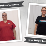 Before & After VSG with Melissa, losing 112 lbs!