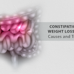 Constipation After Weight Loss Surgery: Causes and Treatments