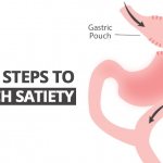 6 Steps to Keep Pouch Satiety After Bariatric Surgery