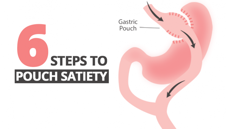 Pouch Satiety After Bariatric Surgery