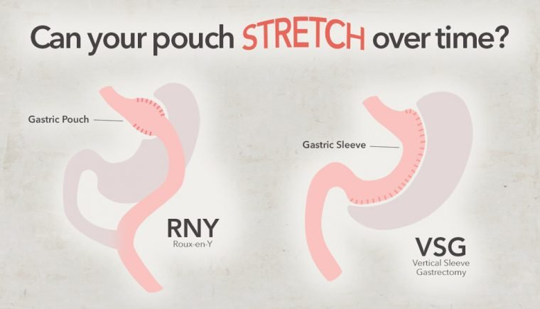 pouch size stomach stretch after bariatric surgery