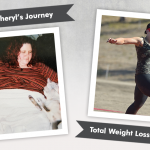 Before & After RNY with Sheryl, losing 200 pounds!