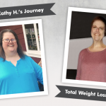 Before & After VSG with Cathy H., losing 147 pounds!