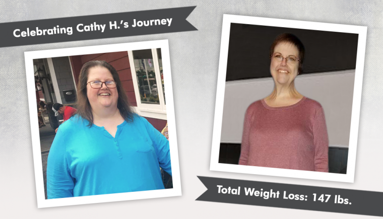 Before & After VSG with Cathy H 3