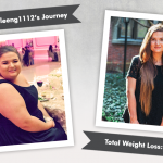 Before & After RNY with Kathleeng1112, losing 178 pounds!