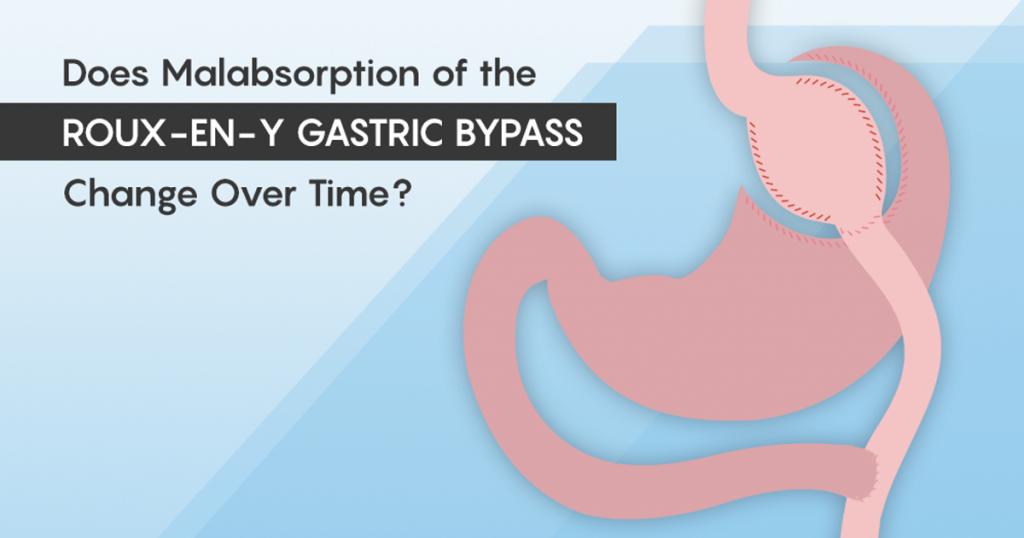 Bariatric Surgery Procedures