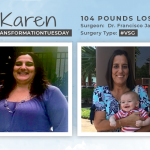 Before & After VSG with Karen, losing 104 pounds!