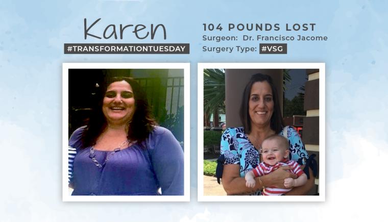Before & After VSG with karen 3