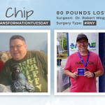 Before & After RNY with Chip, losing 80 pounds!