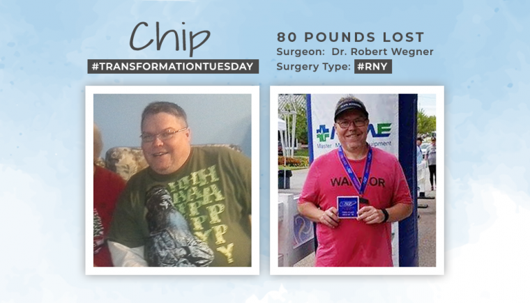 Before After RNY With Chip Losing 80 Pounds