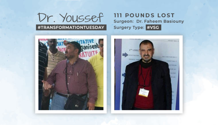 Before & After VSG of Dr. Mohammed Youssef