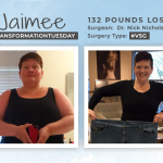 Before & After VSG with Jaimee, losing 132 pounds!