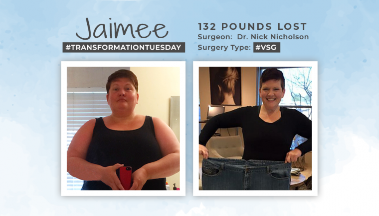 Before & After VSG with Jaimee 2