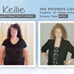 Before & After VSG with Kellie, losing 160 pounds!