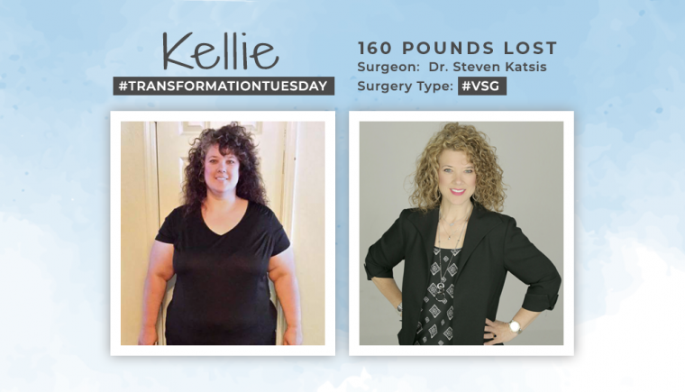 Before & After VSG with Kellie
