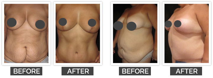 Body Contouring Surgery After WLS